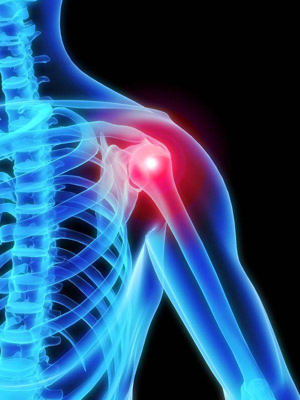 Shoulder Ailment