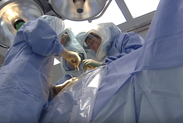 Knee Replacement Procedure