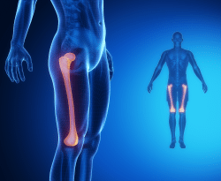 Thigh Fractures Full Body X-Ray