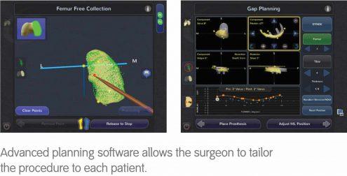 Navio Surgical System