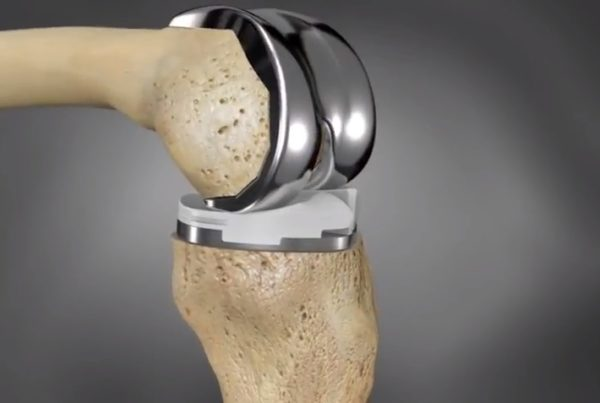 ConforMIS Knee Replacement Implant Animation