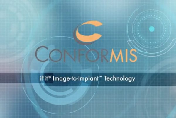 Image-to-Implant Technology ConforMIS Knee Replacement Implant