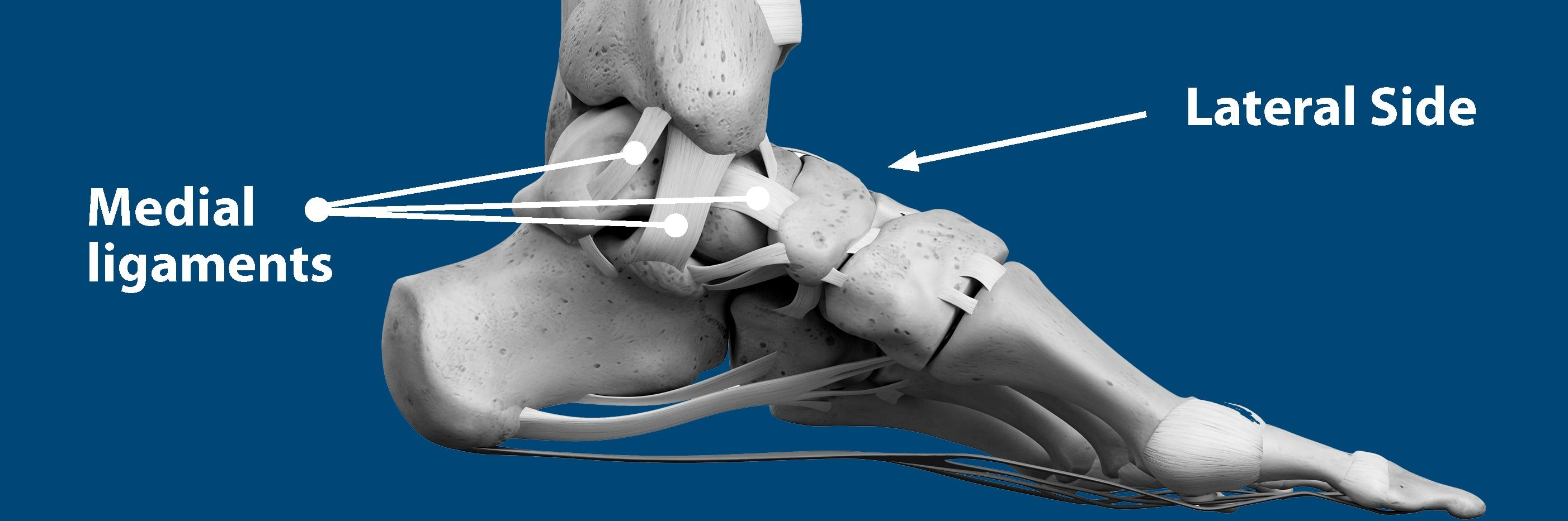 Sprained Ankle | Florida Orthopaedic Institute