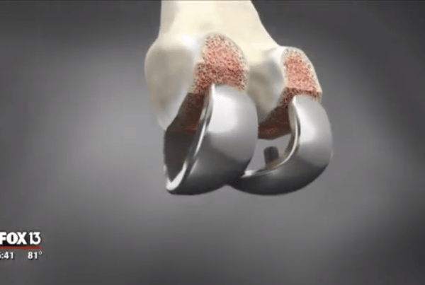 ConforMIS Custom Knee Replacement Implant