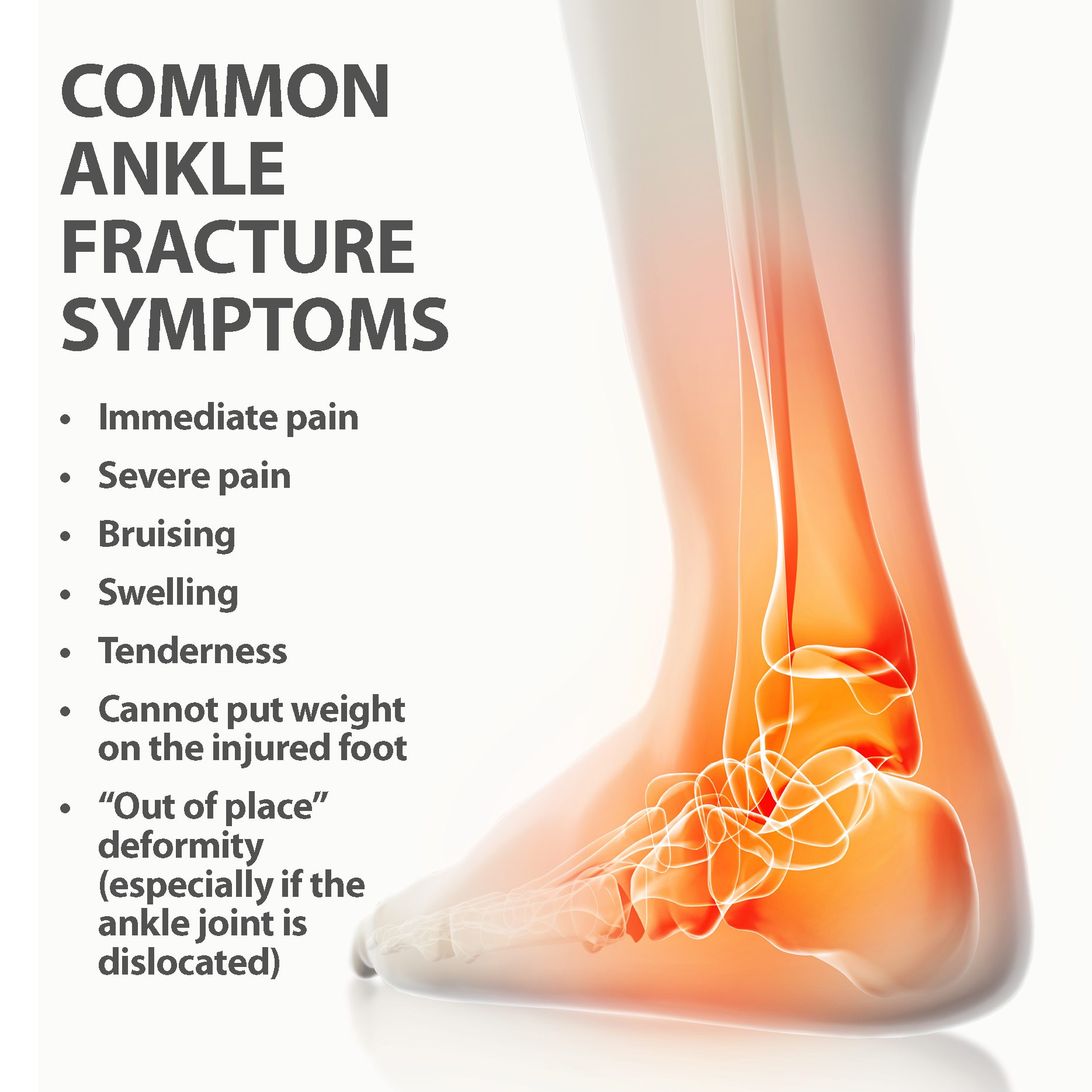 how to tell if you have a fractured ankle