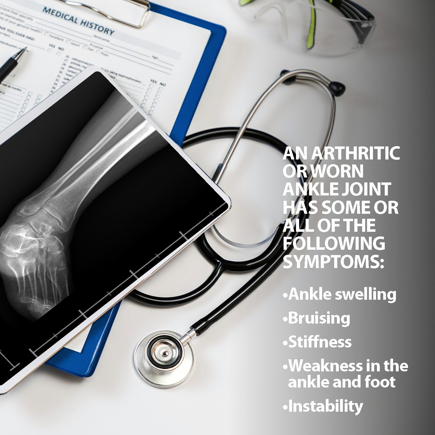 Ankle Fusion Arthritis