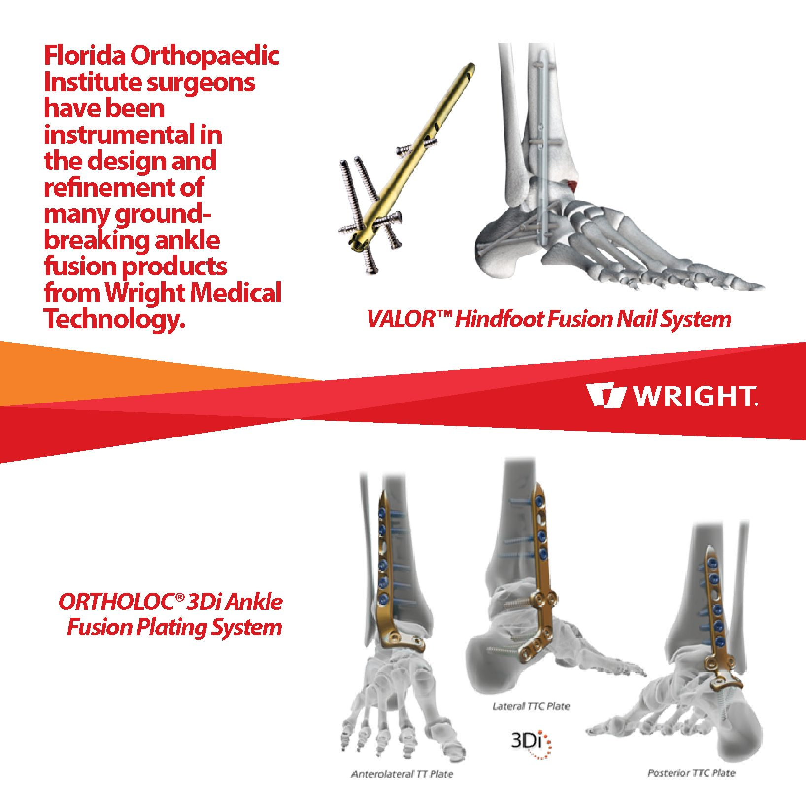 Ankle Fusion Wright System