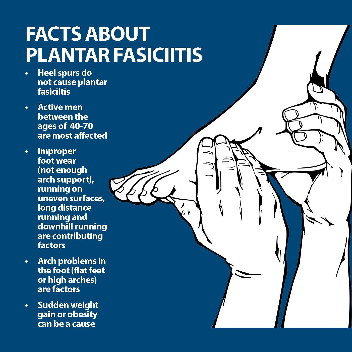 Plantar Fasciitis Facts