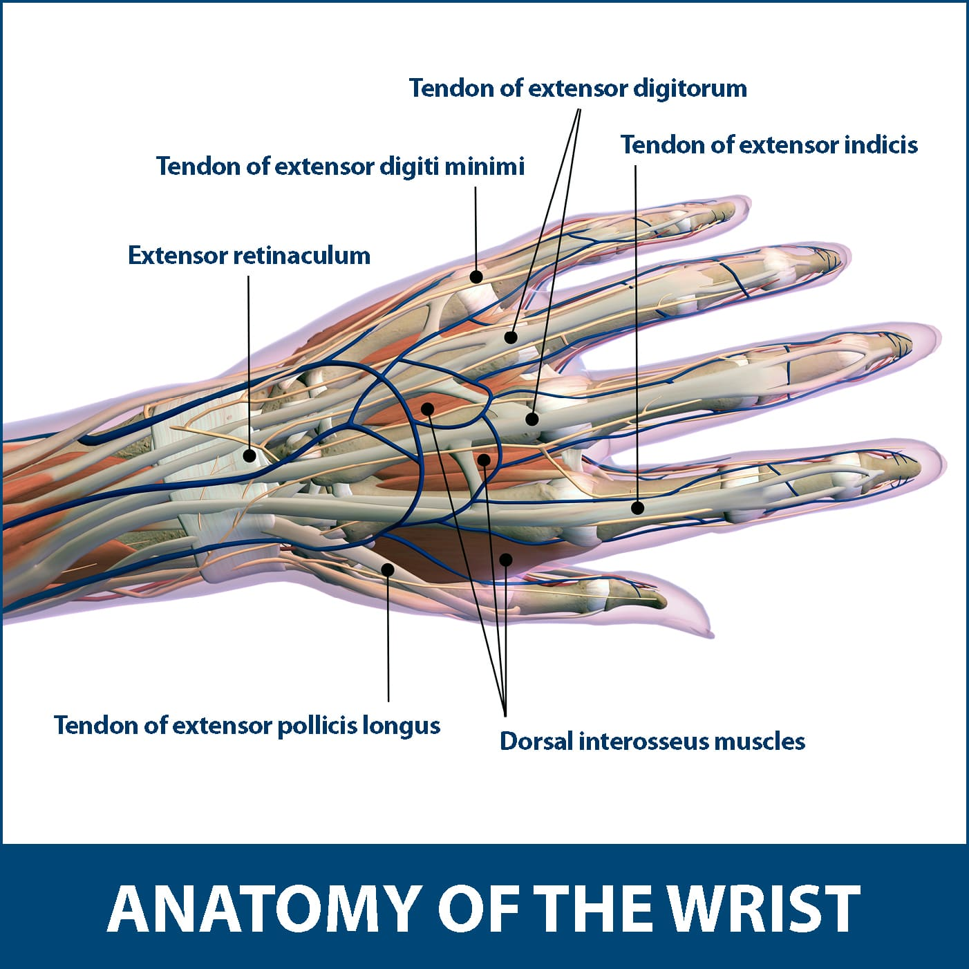 Wrist Tendonitis Florida Orthopaedic Institute