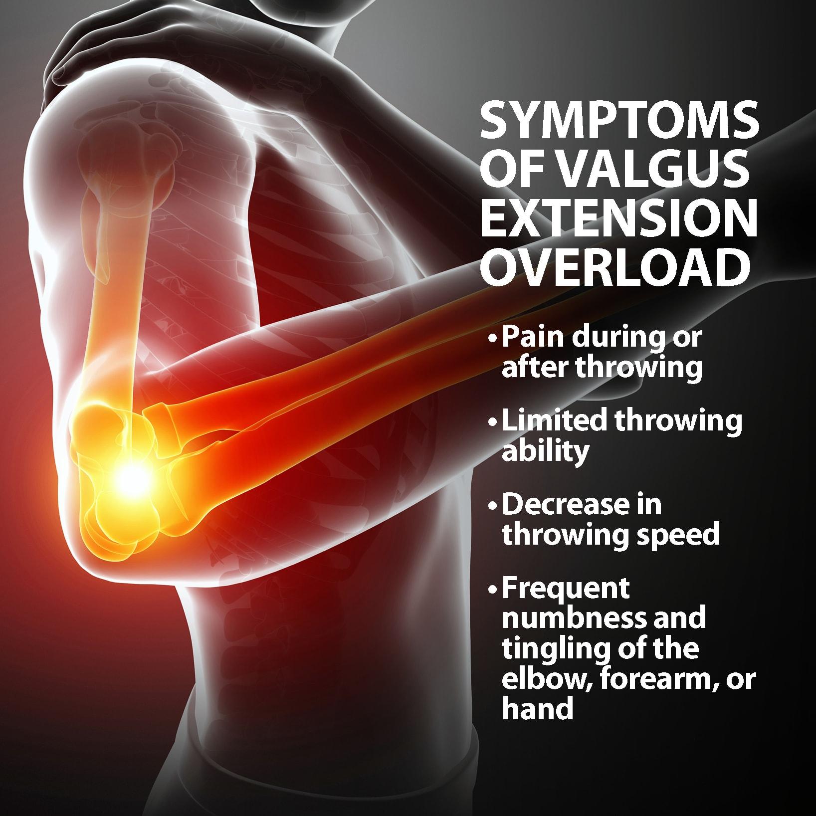 Valgus Extension Overload Symptoms