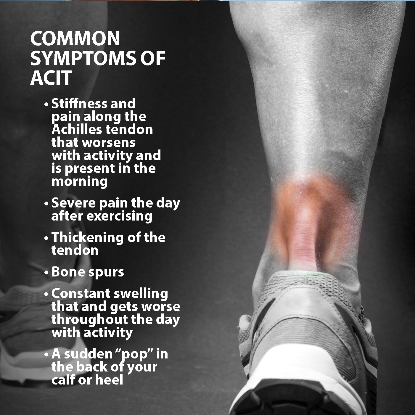 Achilles Tendinitis Symptoms