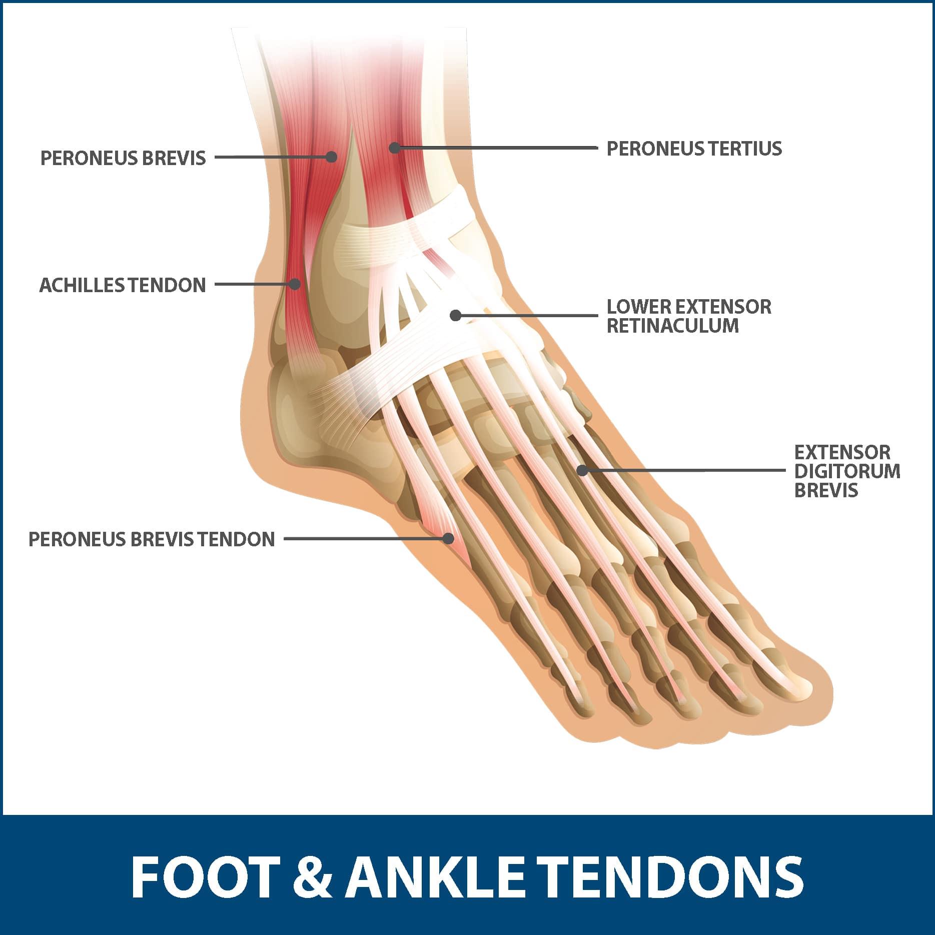 Achilles Tendinitis Tendons