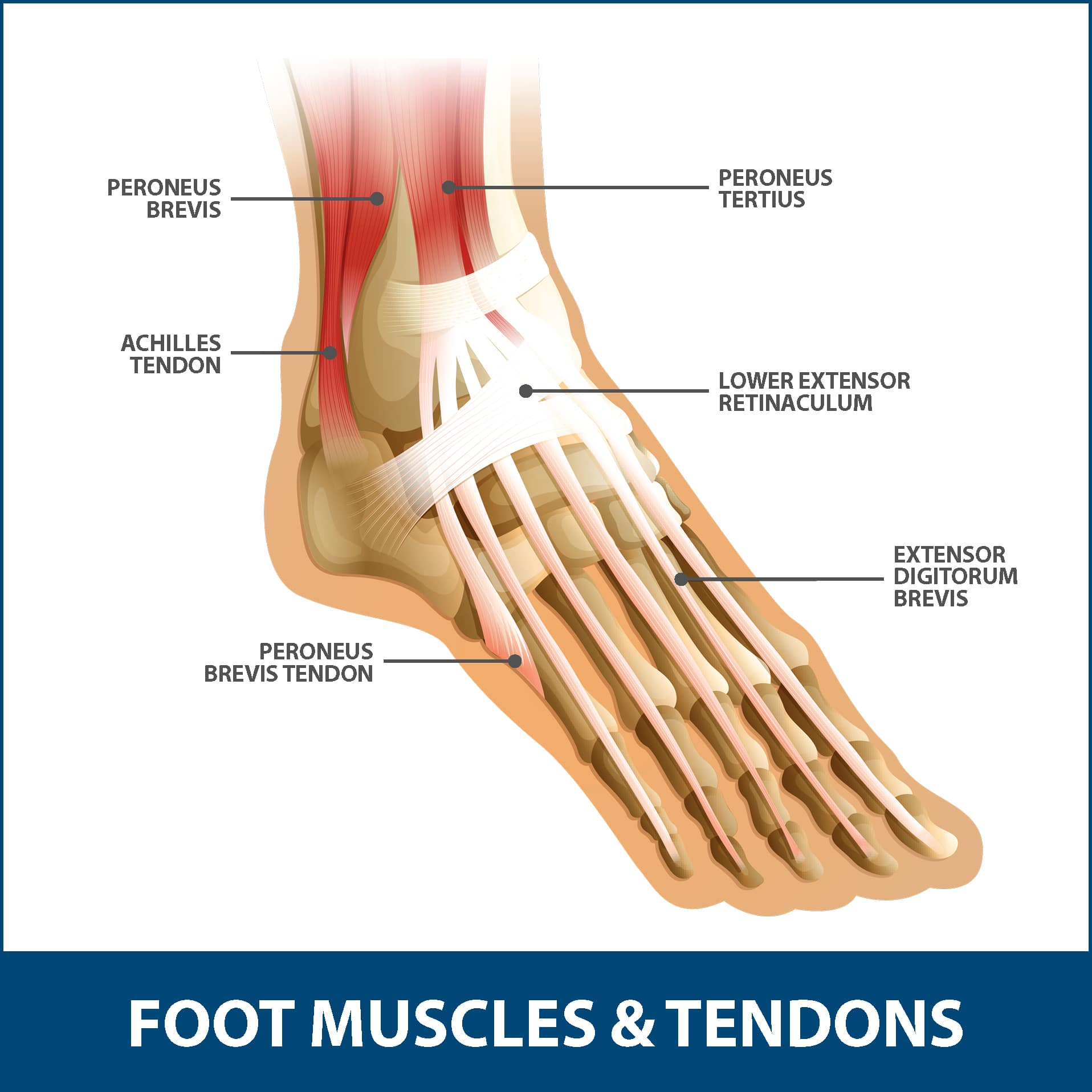 Achilles Tendon Rupture Foot Muscles and Tendons
