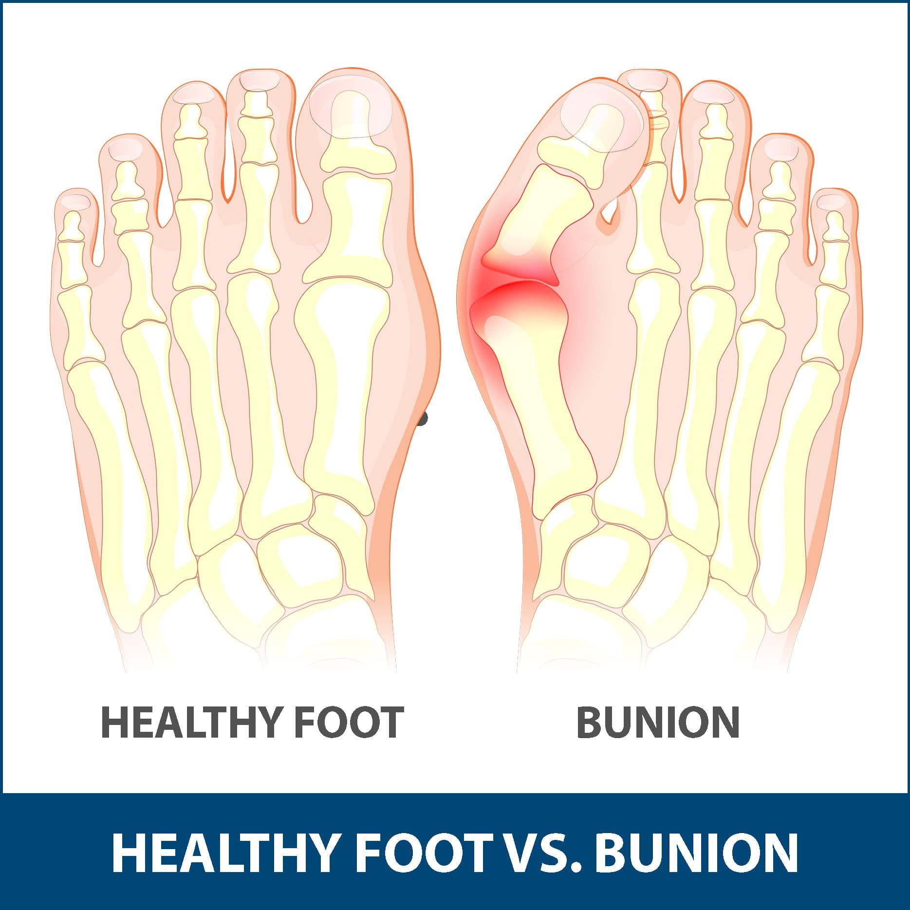 Bunions Healthy Foot vs. Bunion
