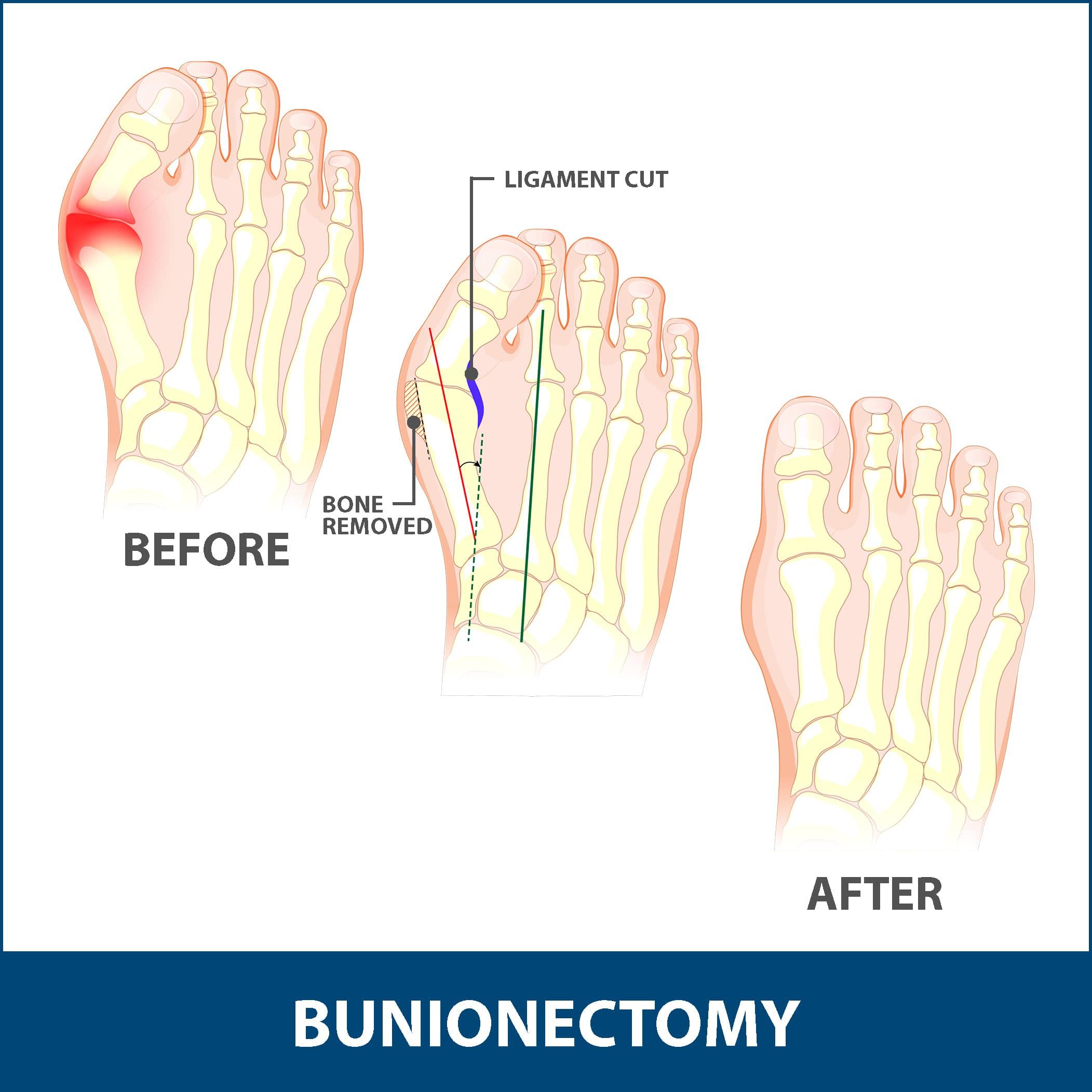 Bunions Bunionectomy