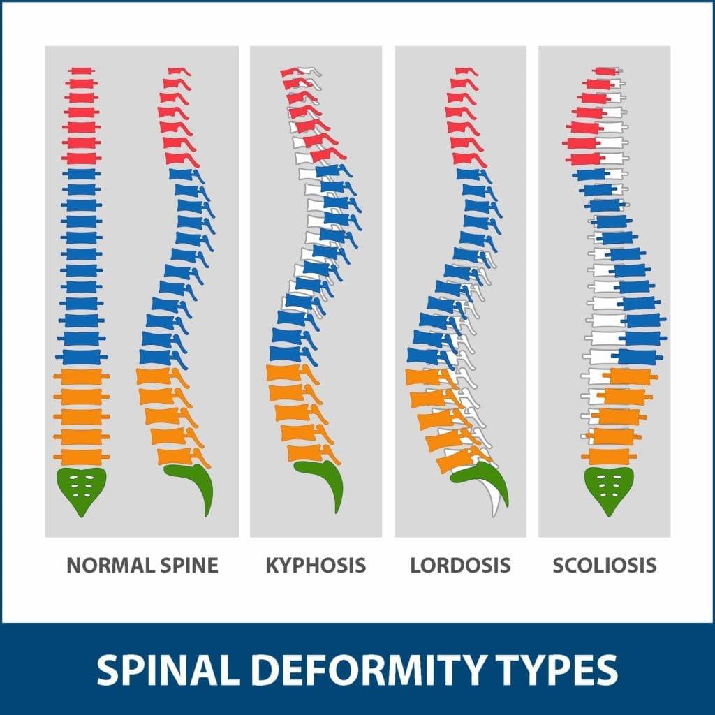 Kyphosis Spinal Deformity Types