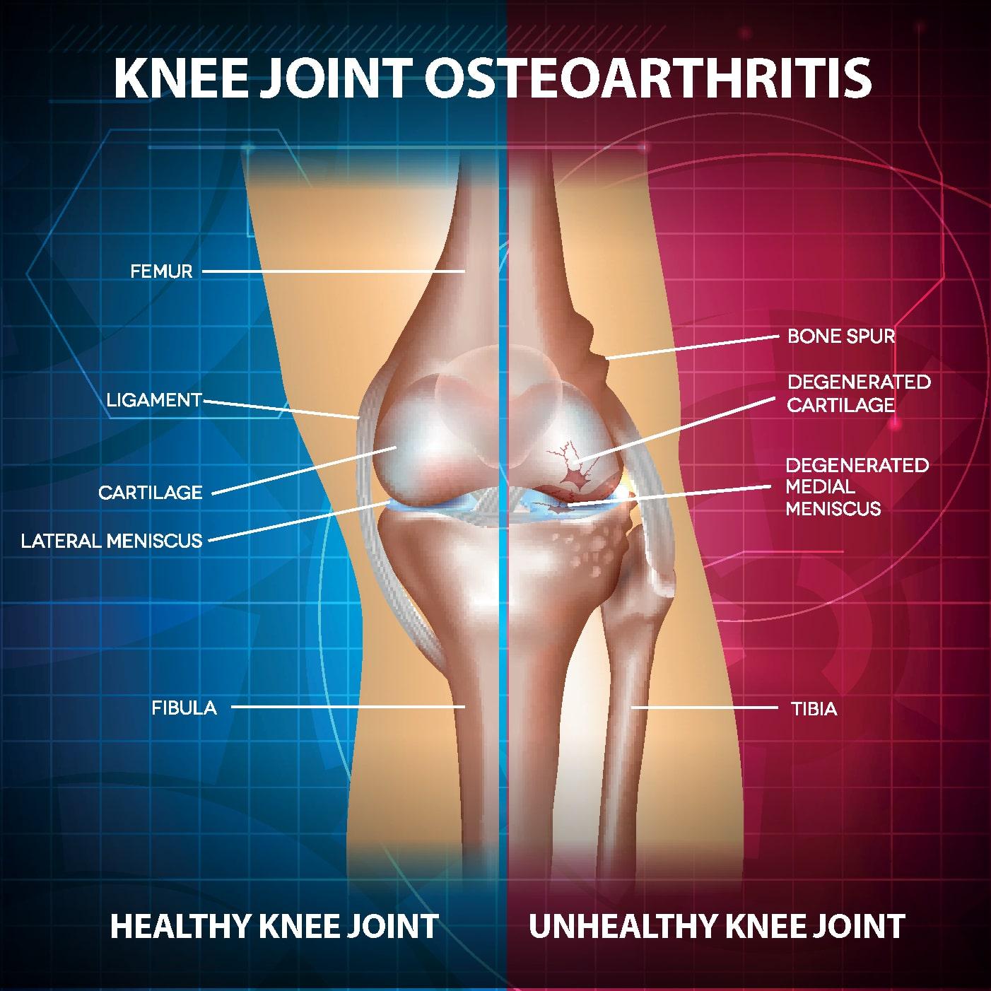 Osteoarthritis Knee Joint