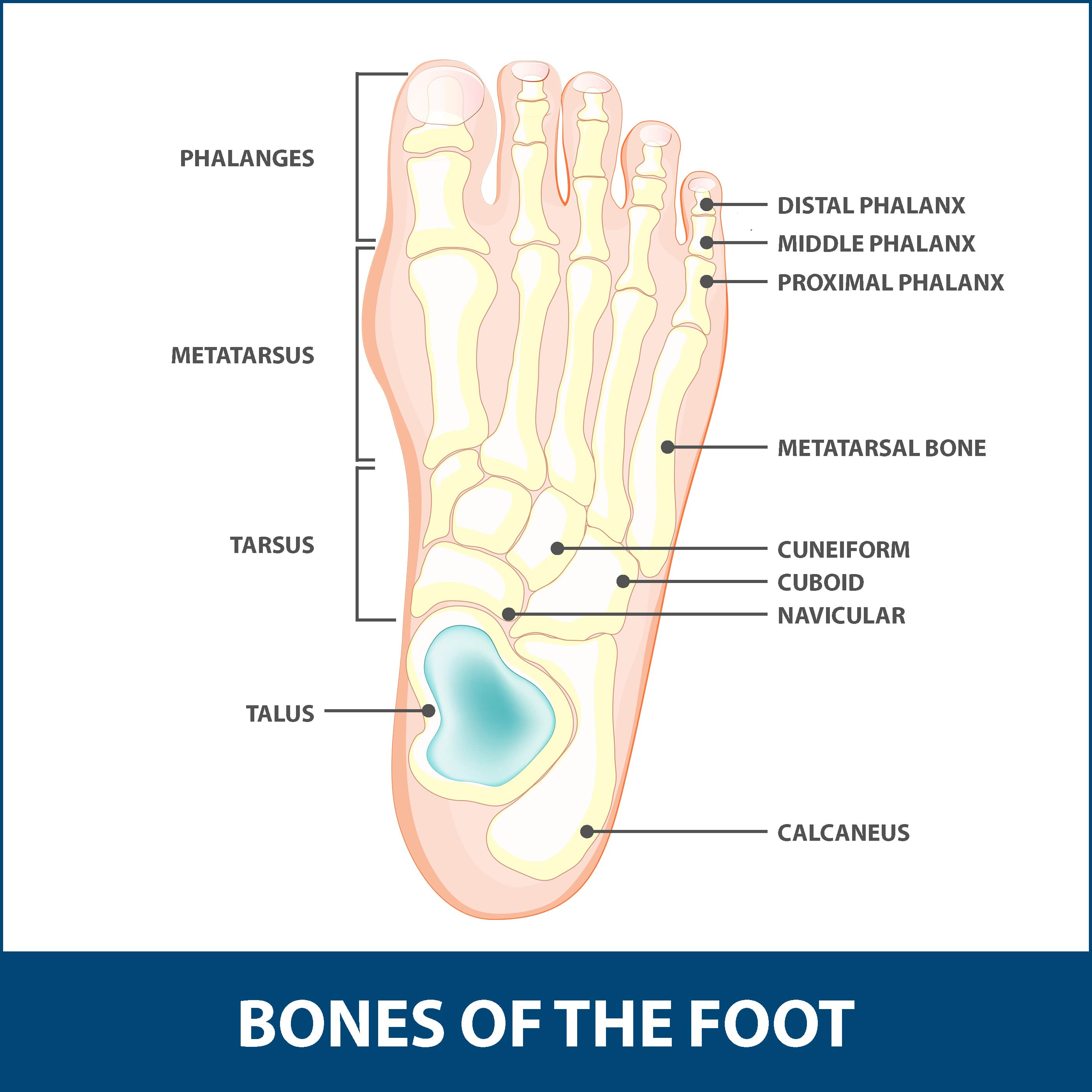 Hallux Rigidus, diagram of the bones of the foot