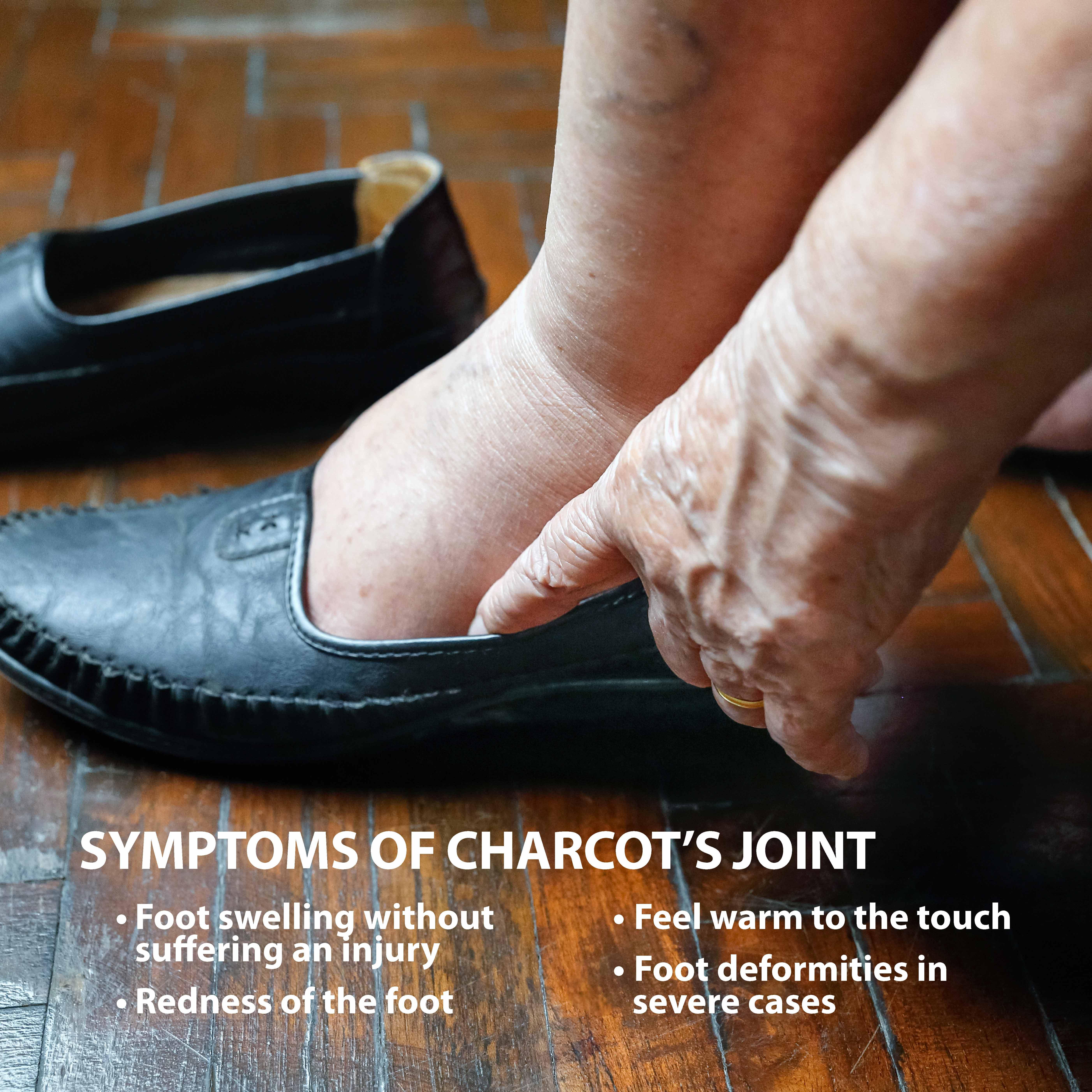 Charcot Joint Symptoms
