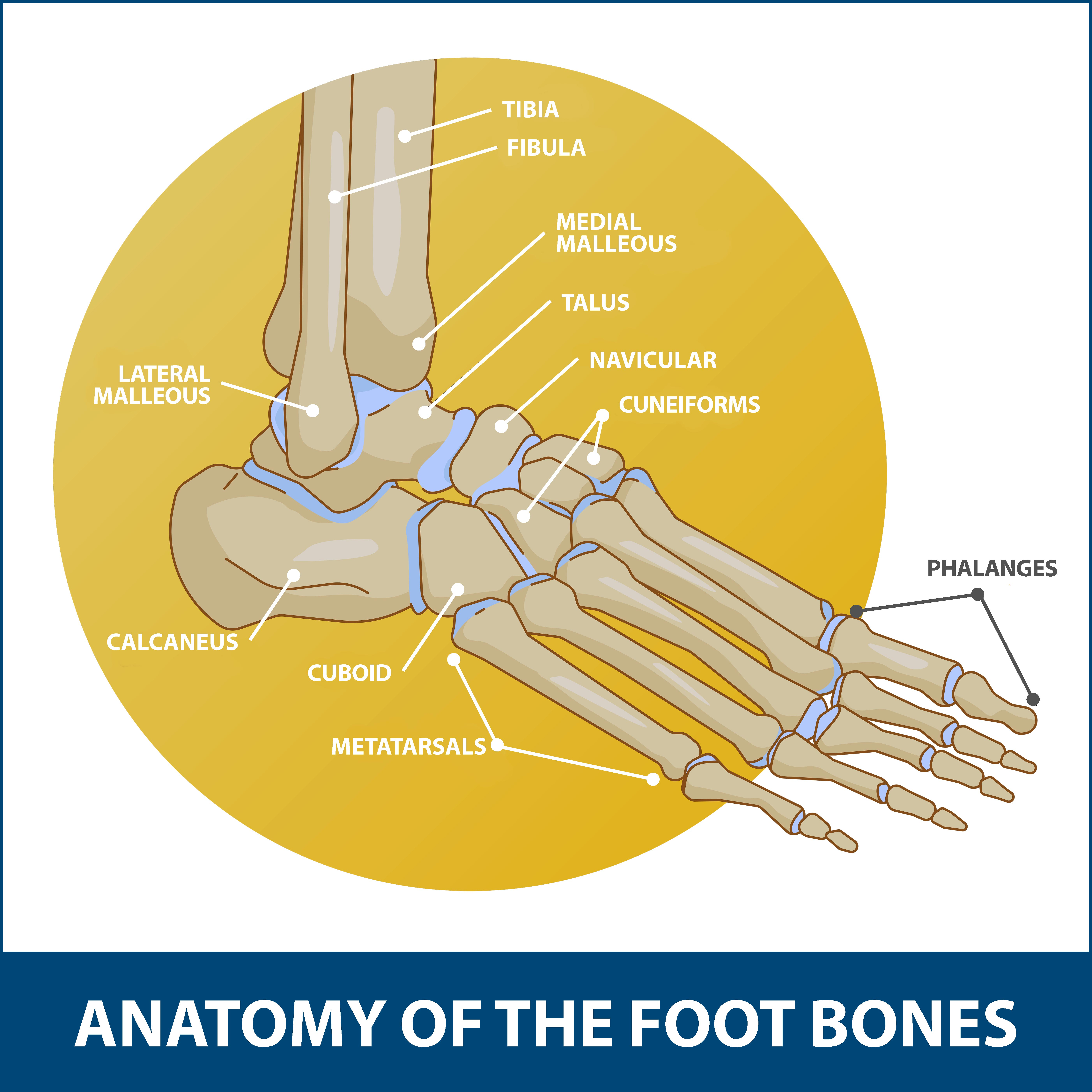 Intraarticular Calcaneal Fractures, Bones of the foot graphic