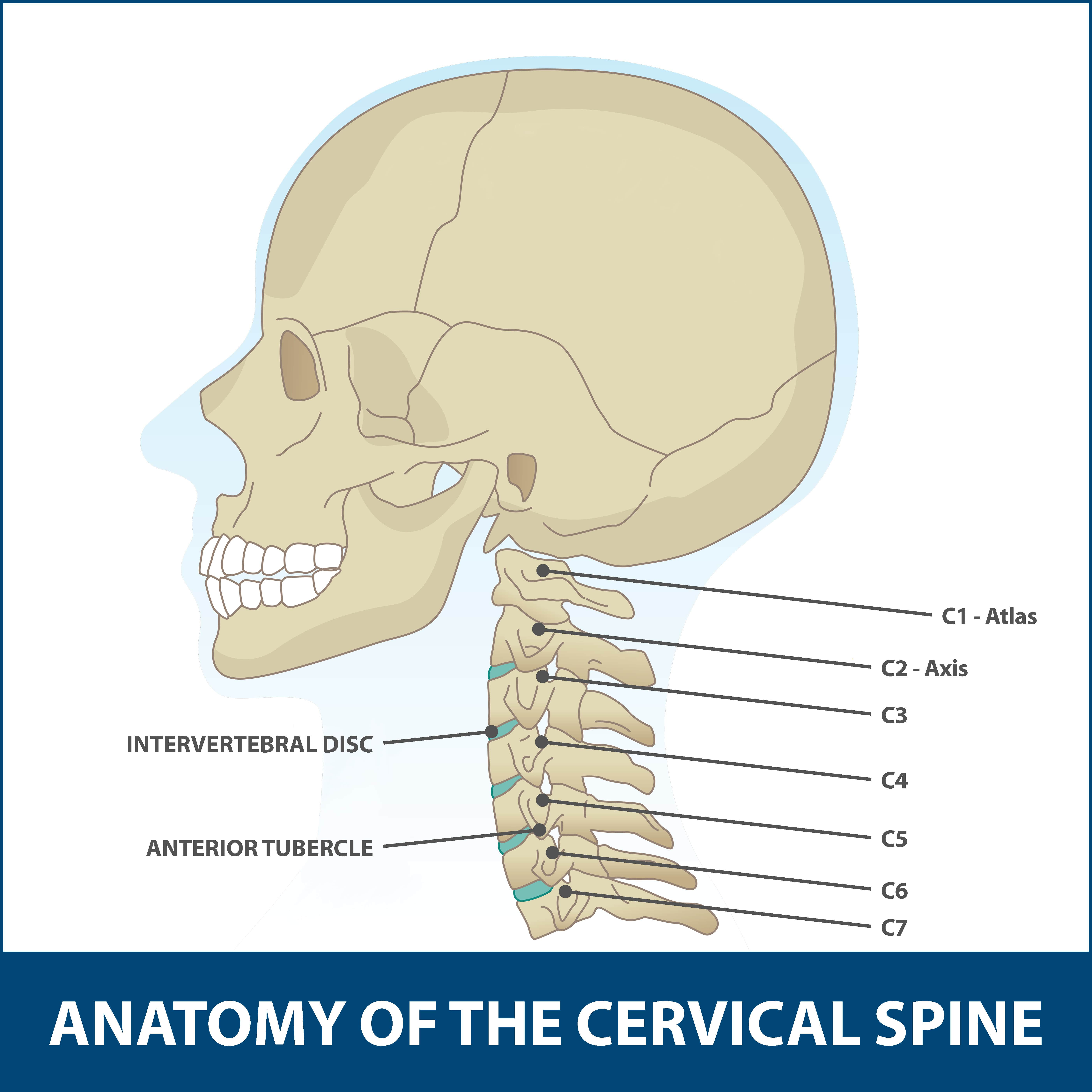 Anatomy of spine area affected by whiplash.