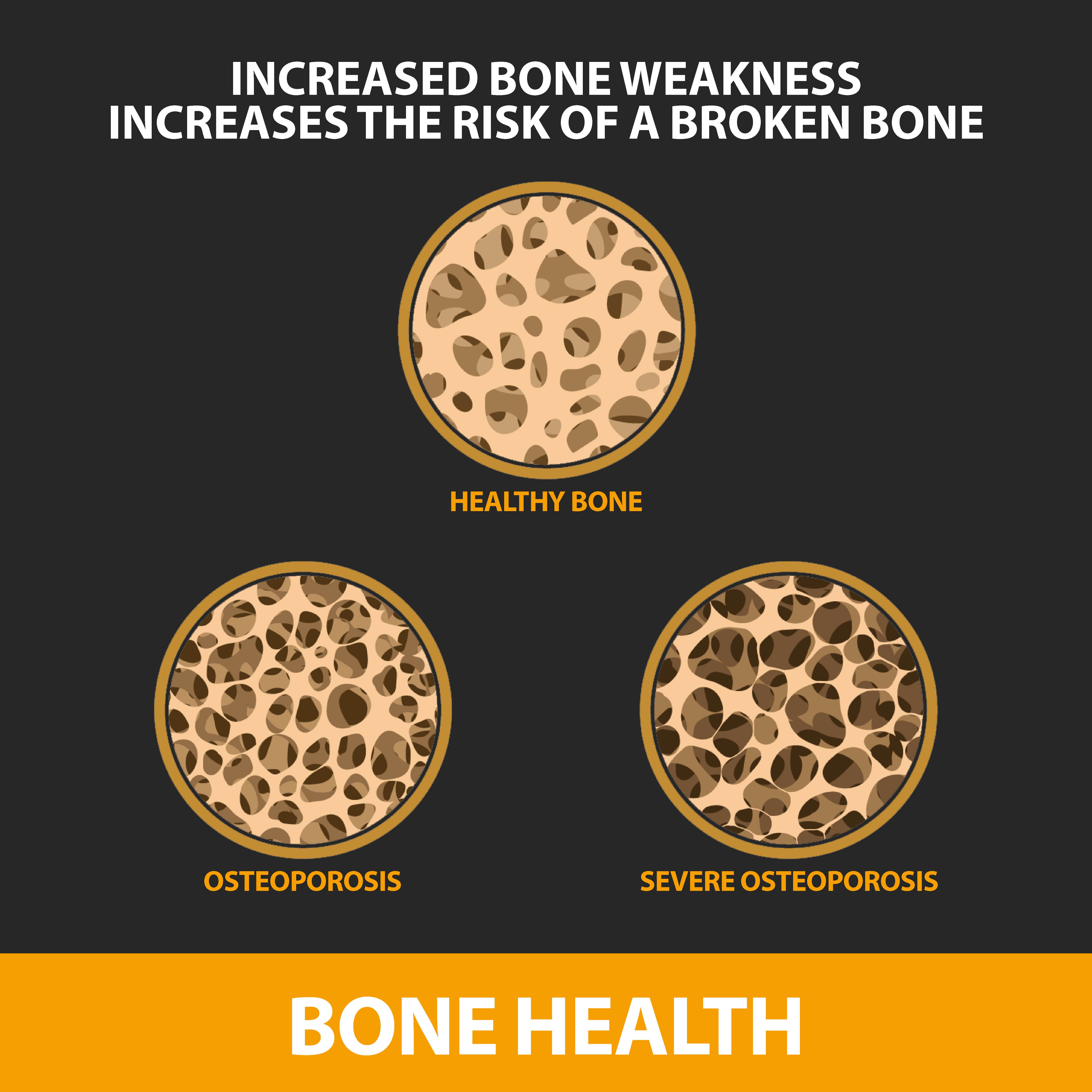 Osteoporosis informational graphic