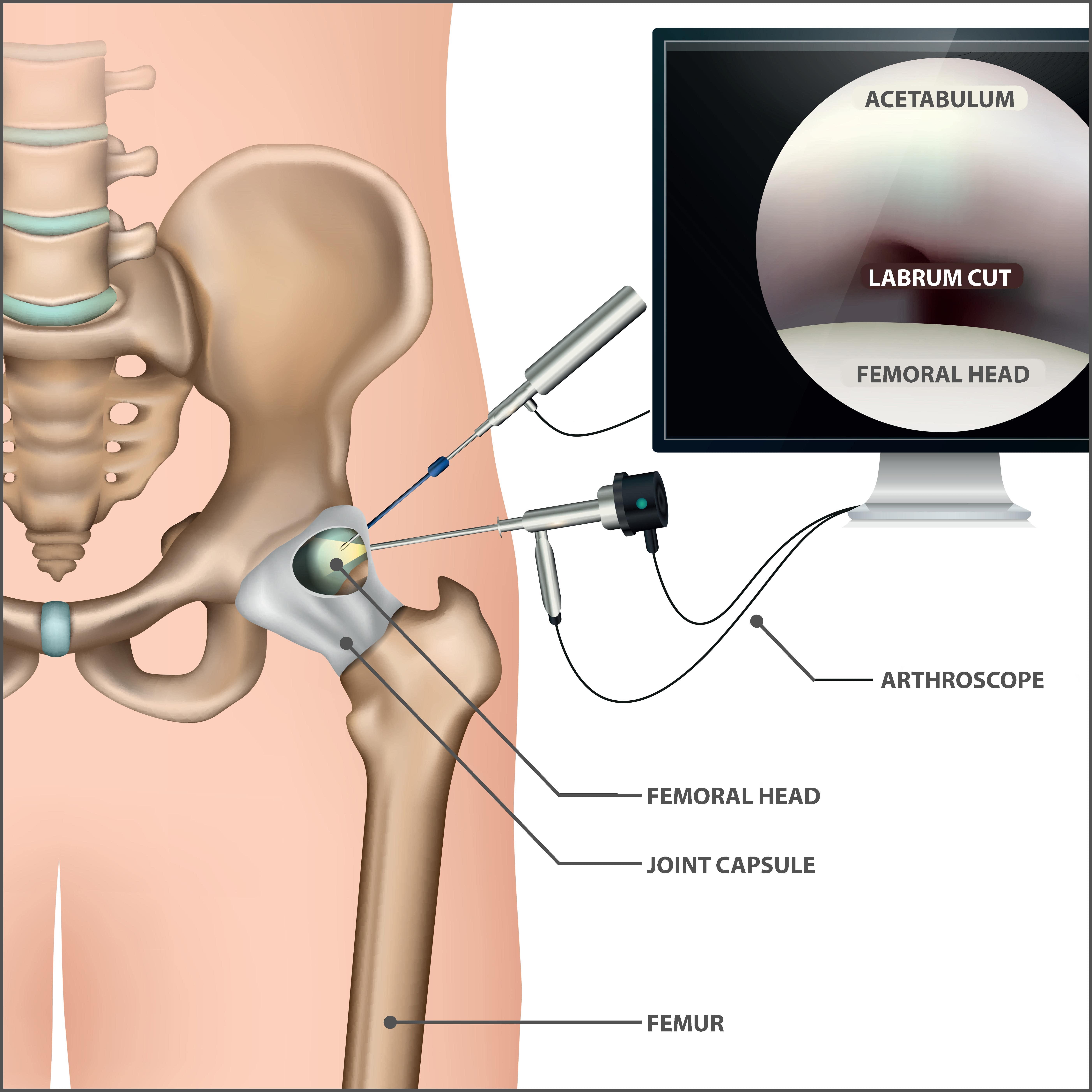 Hip Arthroscopy Graphic