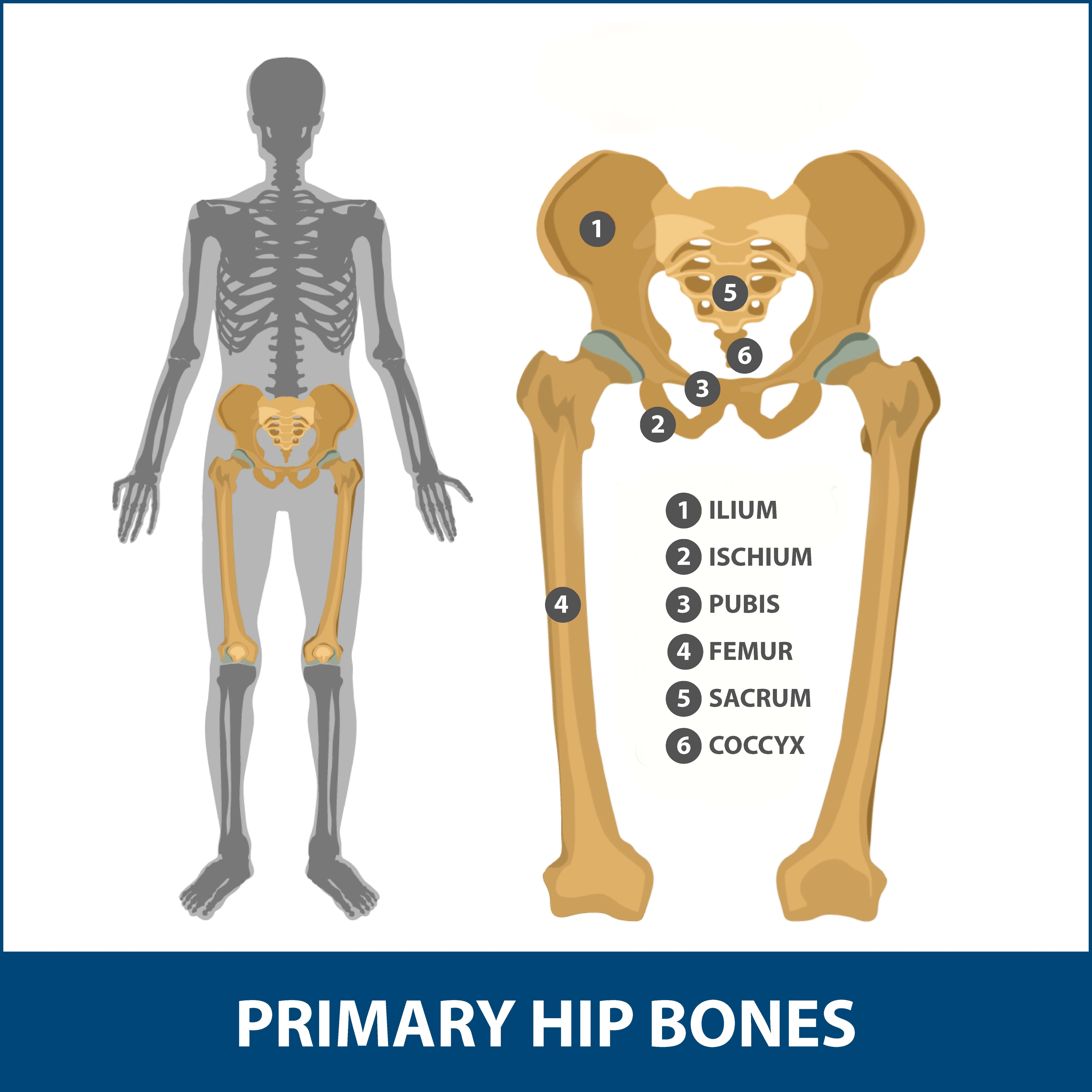 Hip dislocation graphic