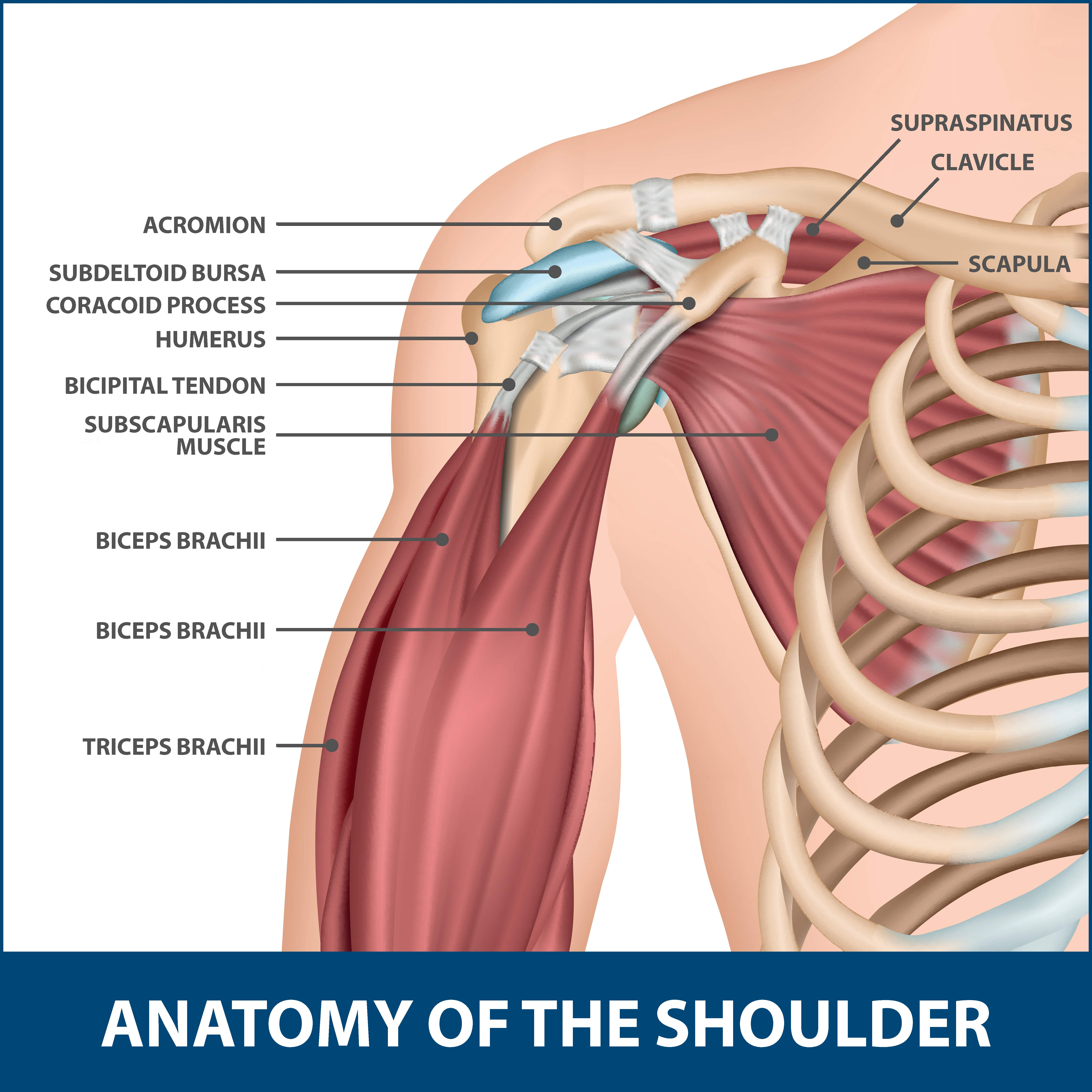 Calcific Tendinitis of the Shoulder
