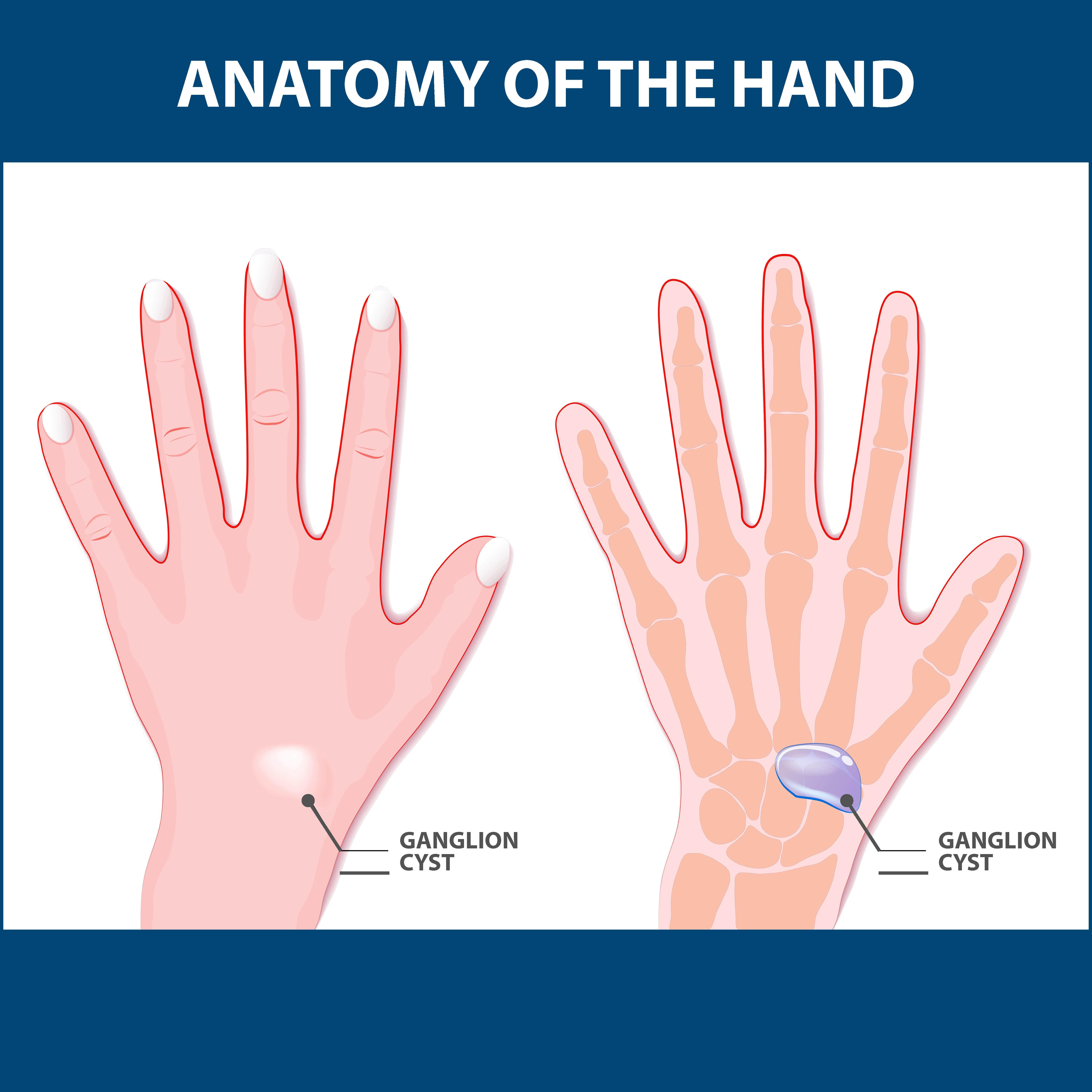 ganglion cysts anatomy graphic