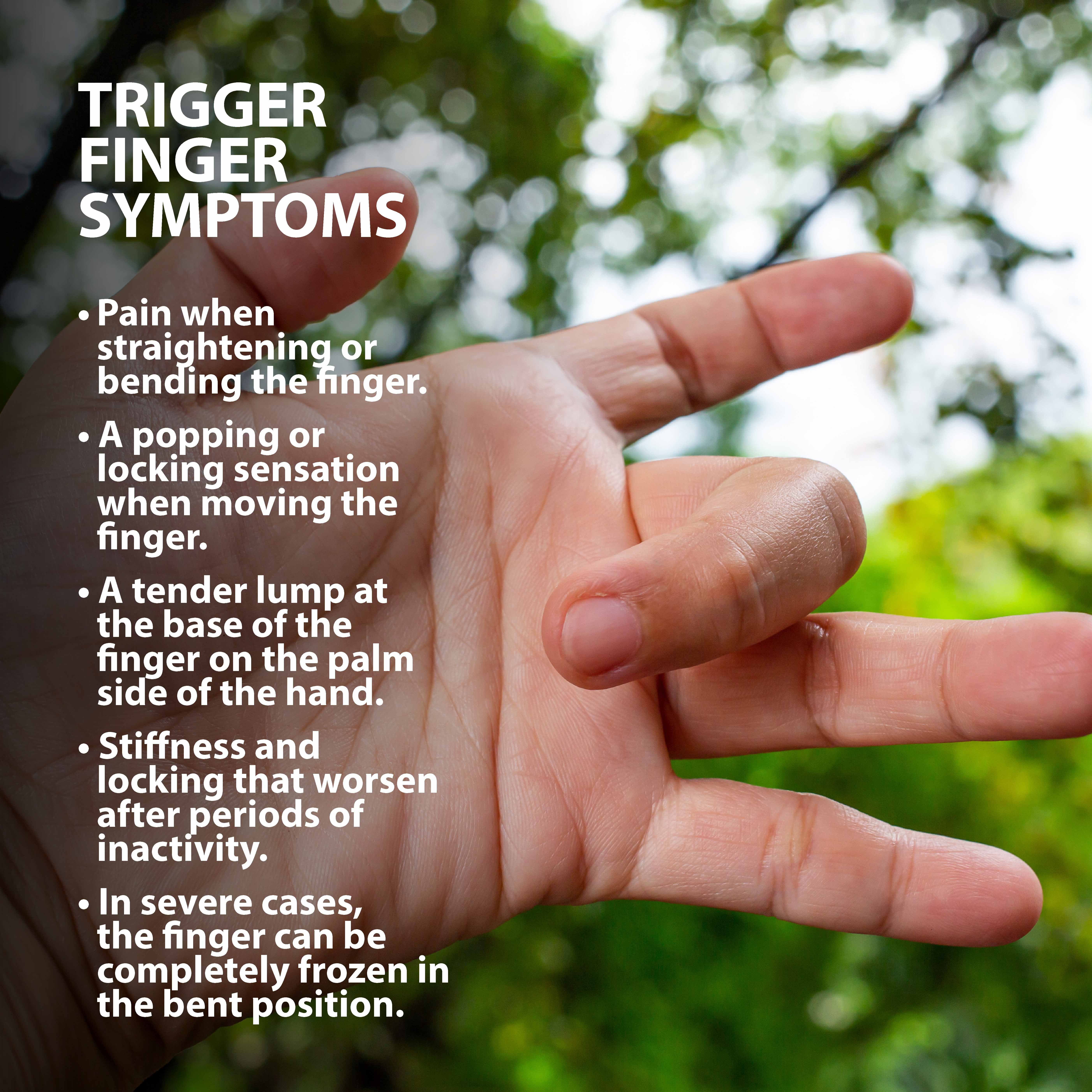 Trigger finger information graphic