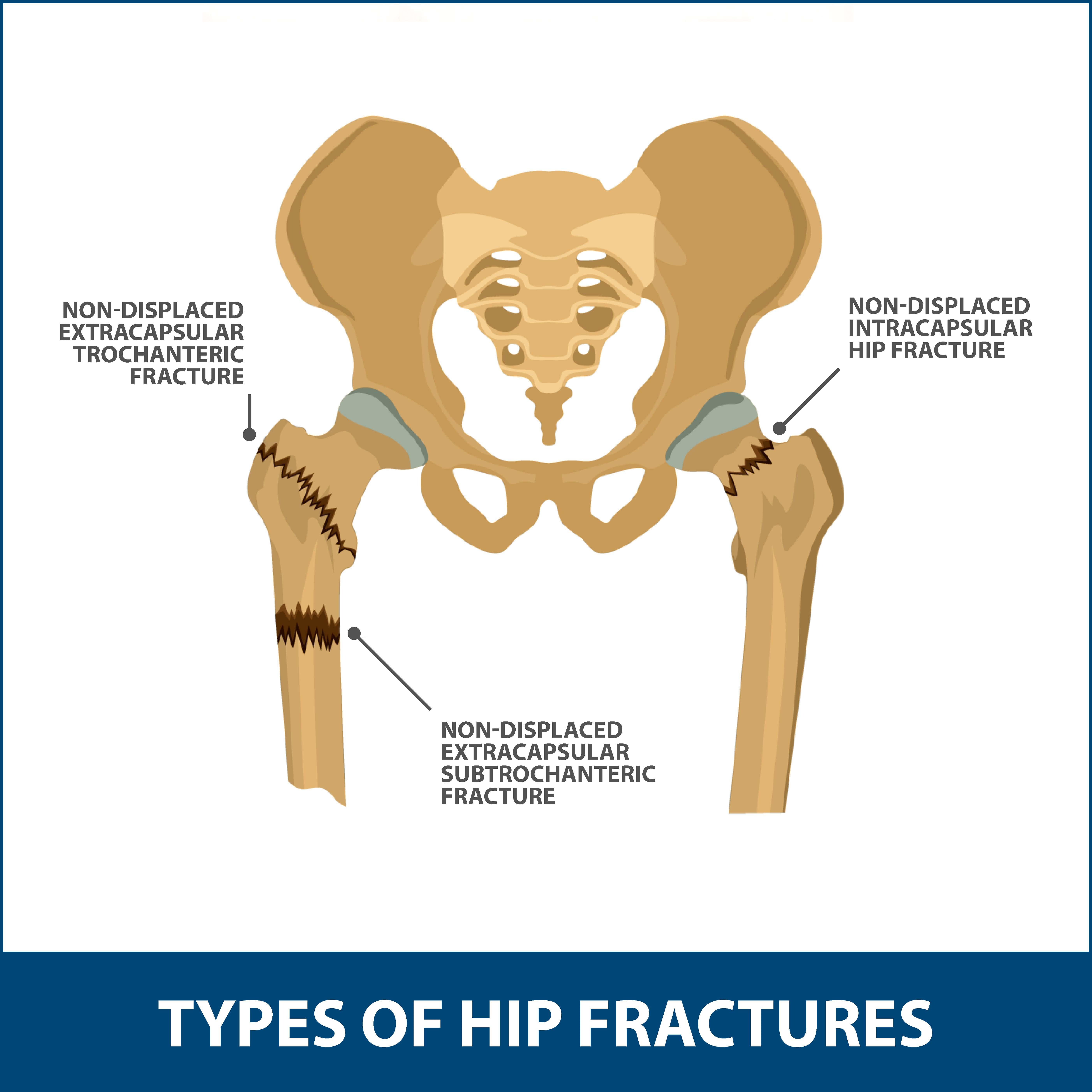 Hip Fractures Information | Florida Orthopaedic Institute