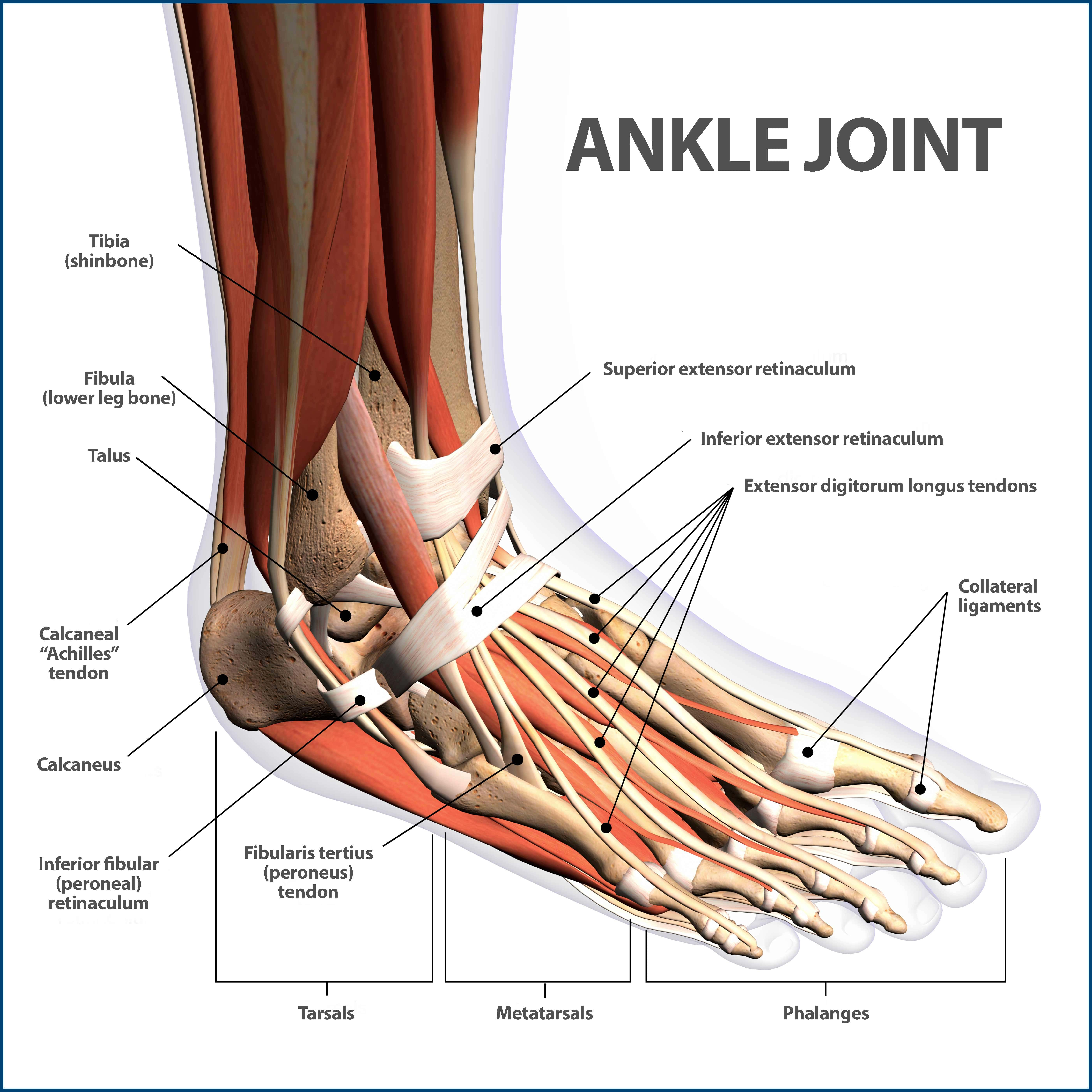 Ankle Fractures Broken Ankle Florida Orthopaedic Institute