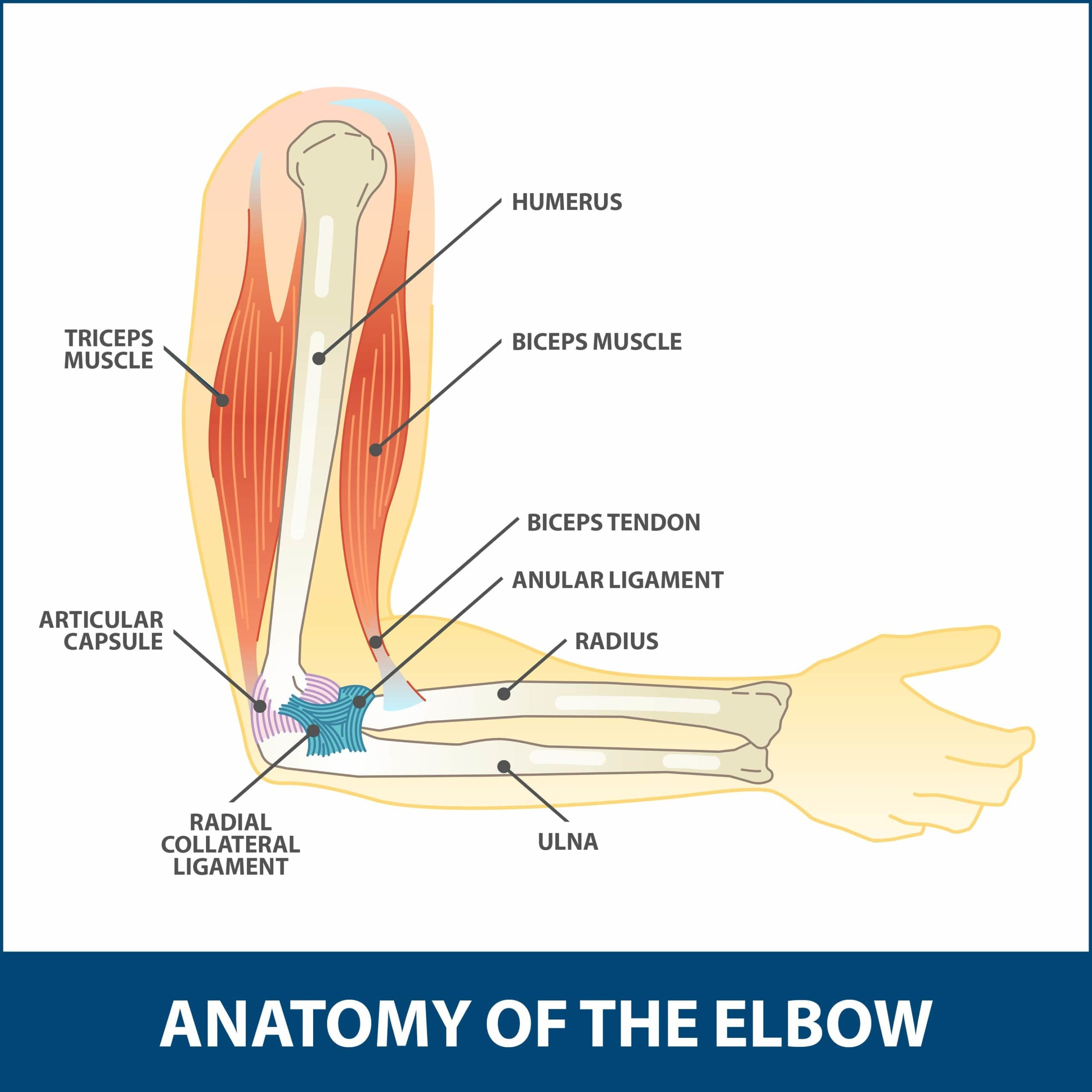 arm tendons diagram hyperextension injury of the elbow florida orthopaedic institute  hyperextension injury of the elbow