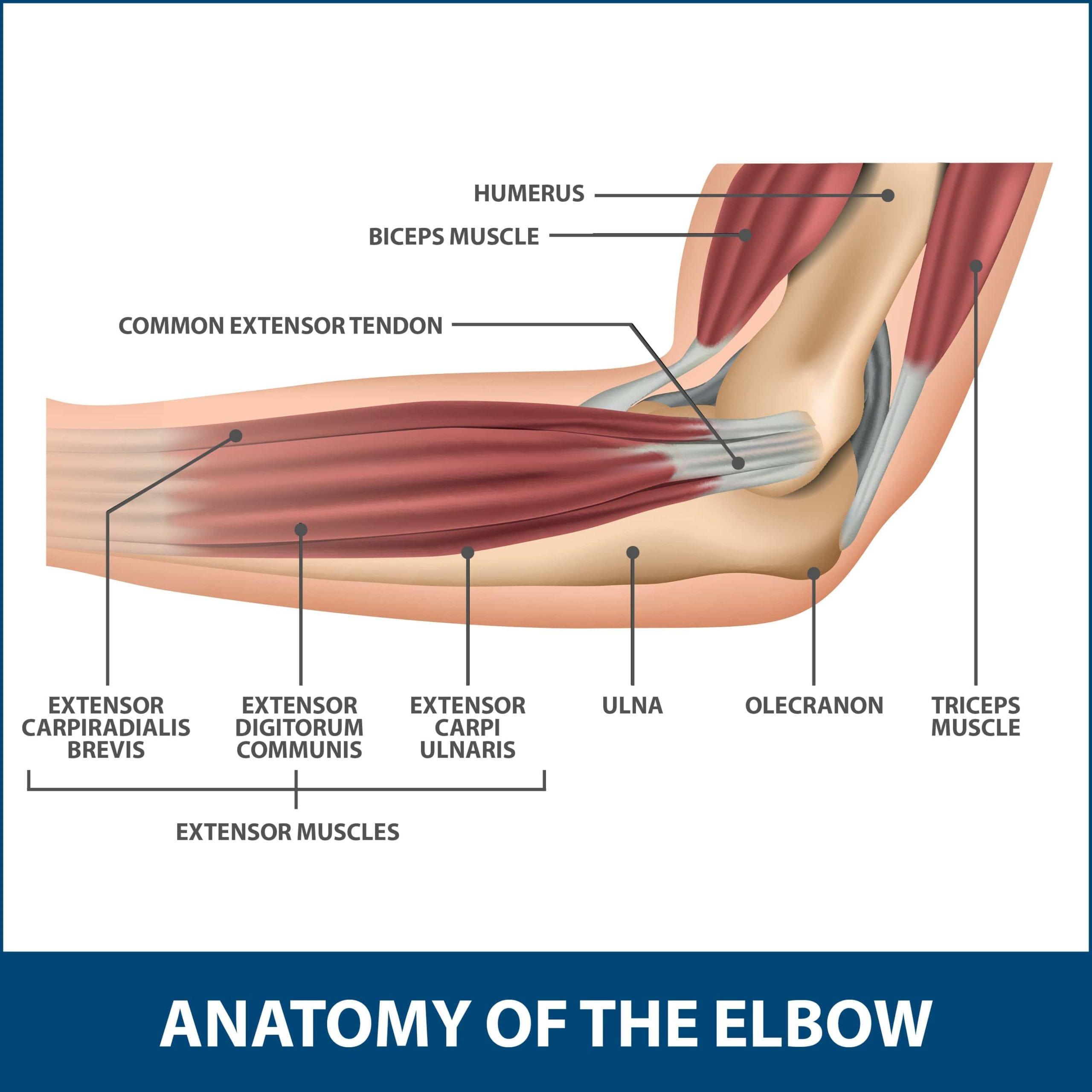 Little Leaguer's Elbow