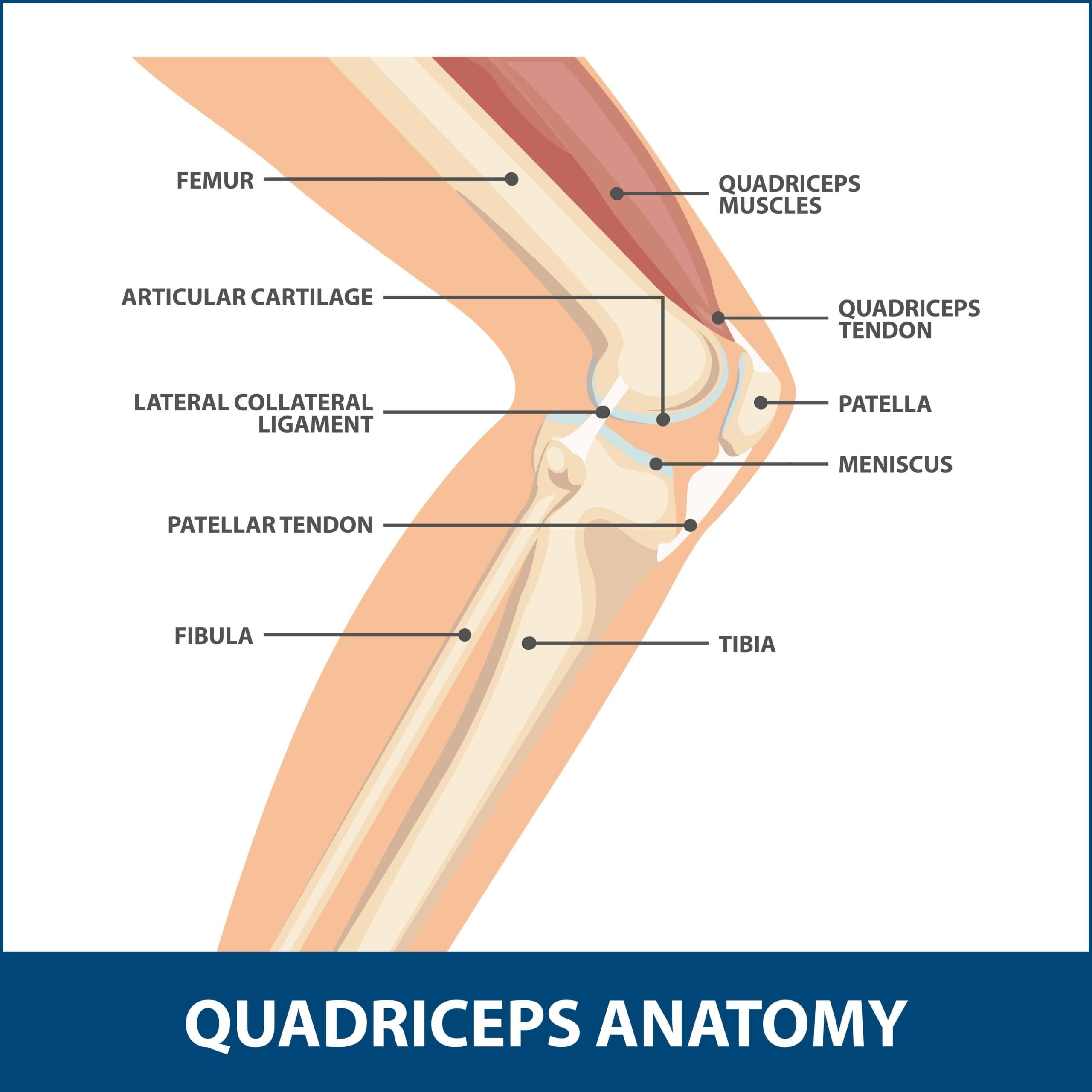 Quadriceps Tendon Tear