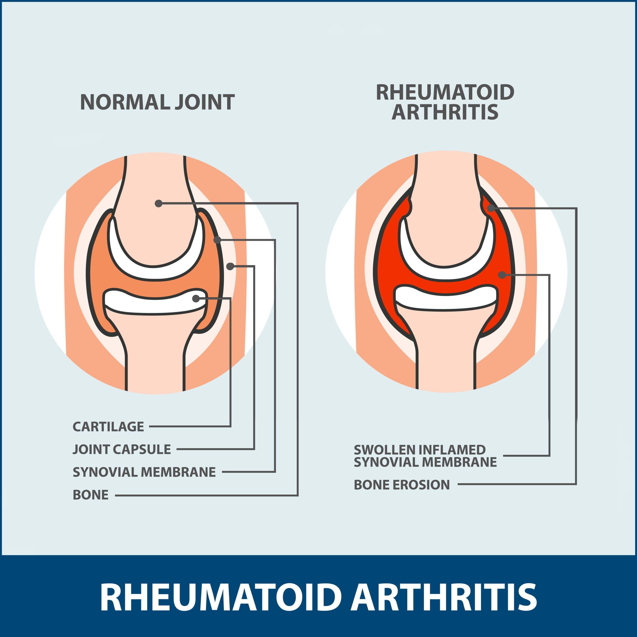 Rheumatoid Arthritis of the Shoulder