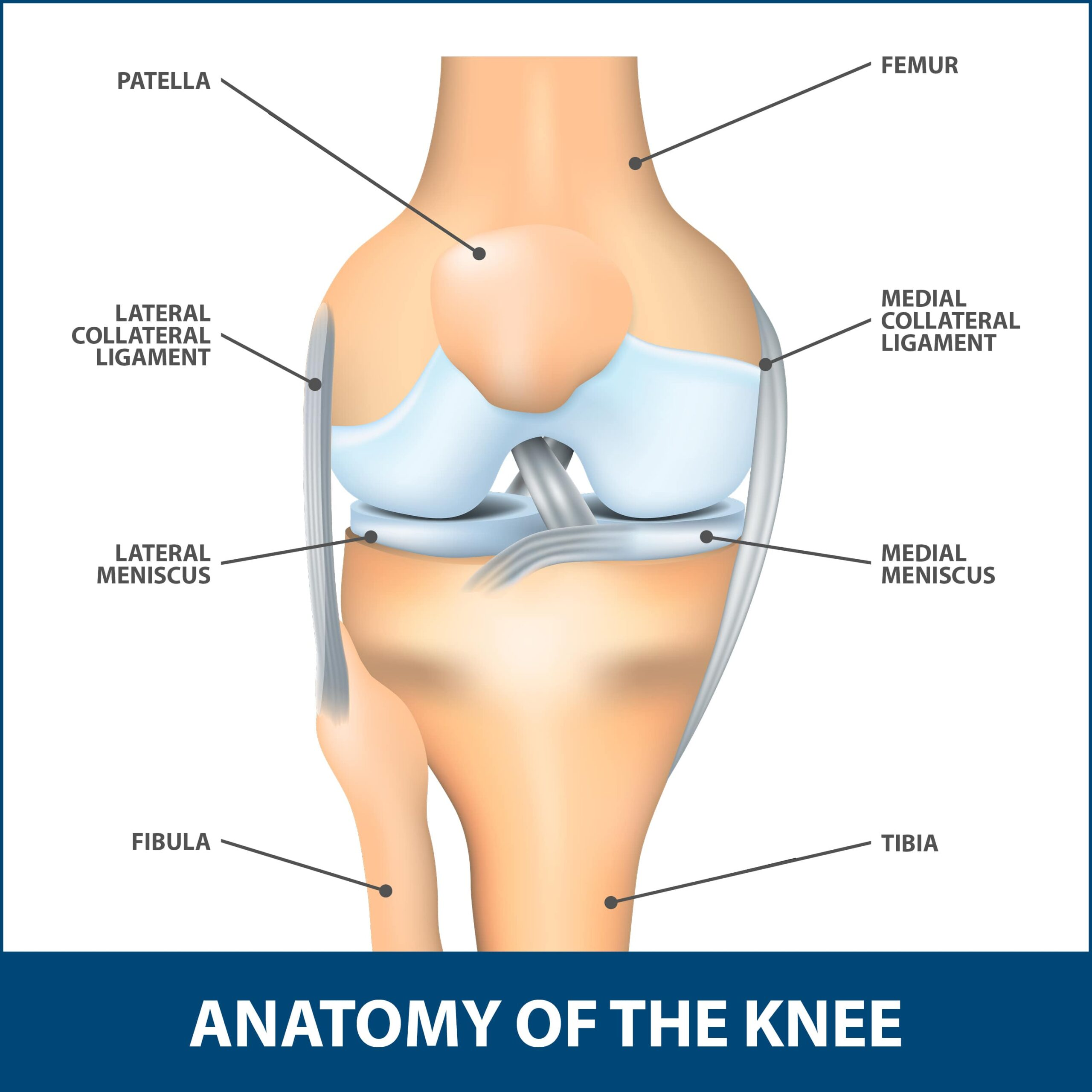 Revision Knee Surgery