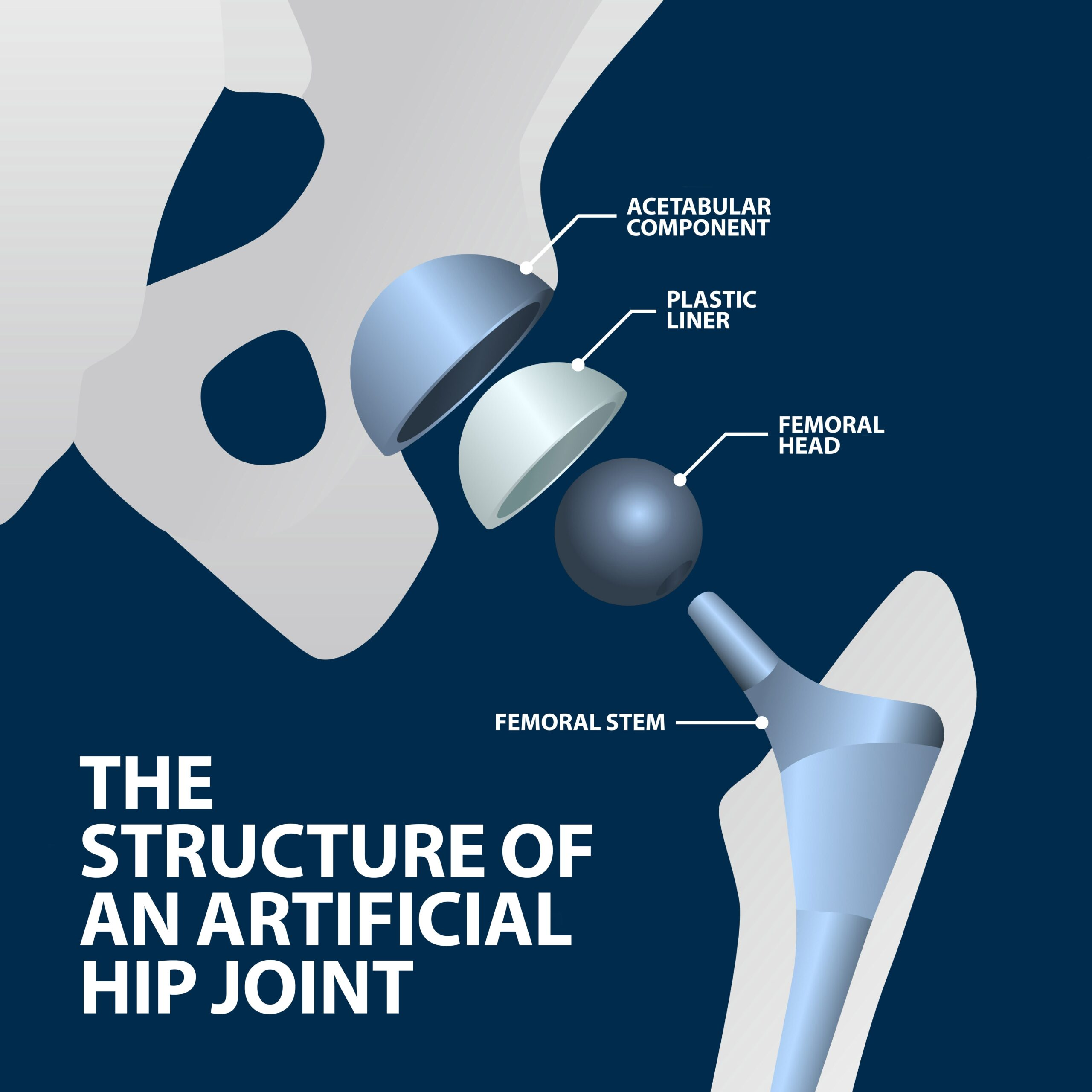 Total Hip Replacement - Anterior Approach