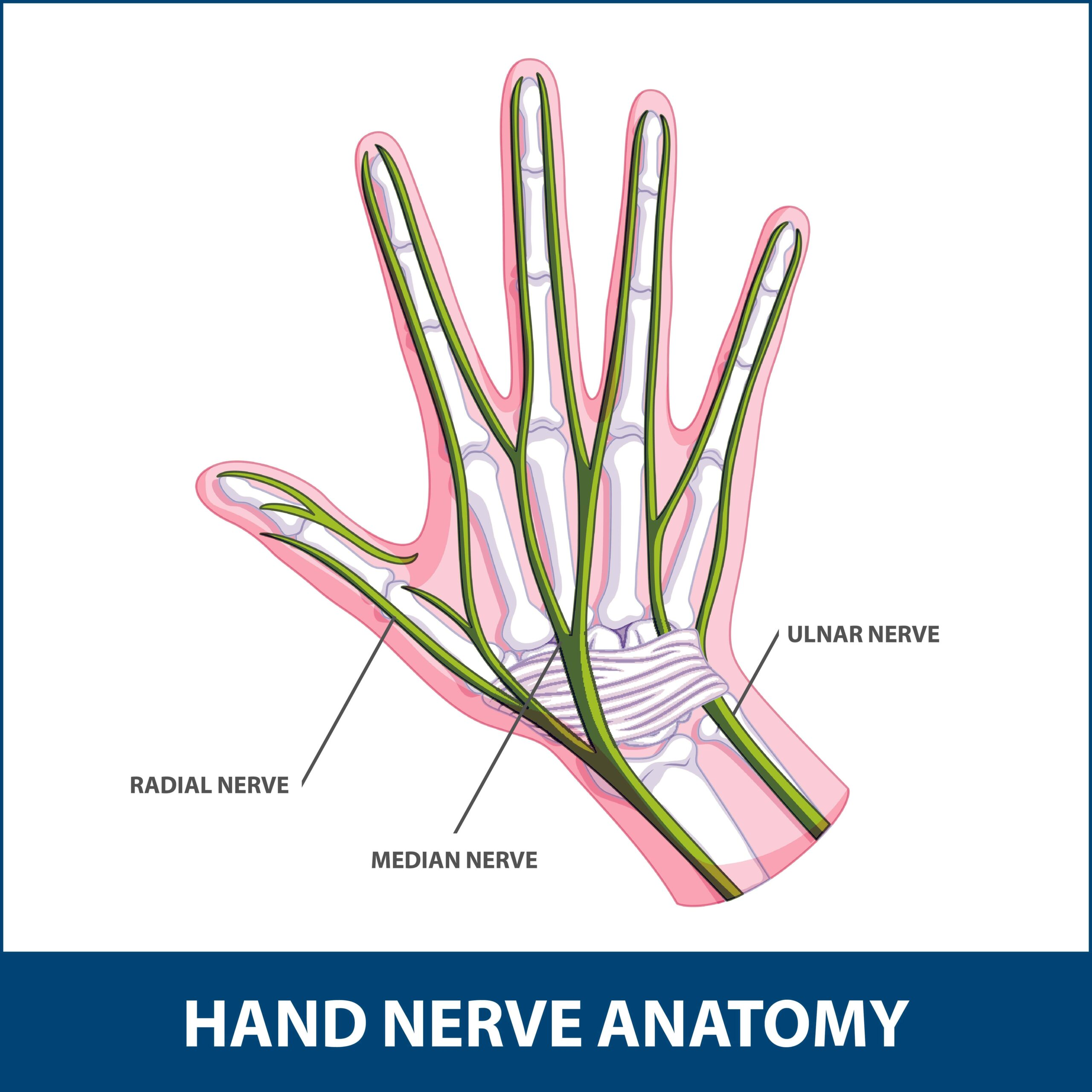 Hand Nerve Decompression