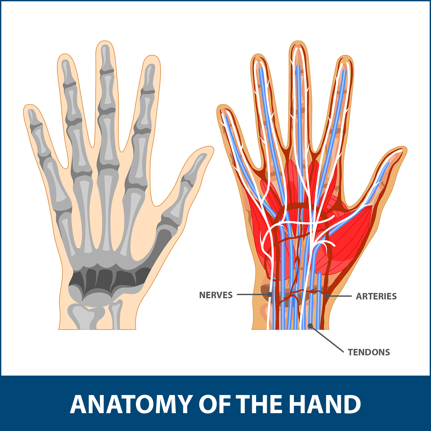 Sports Wrist and Hand Injuries