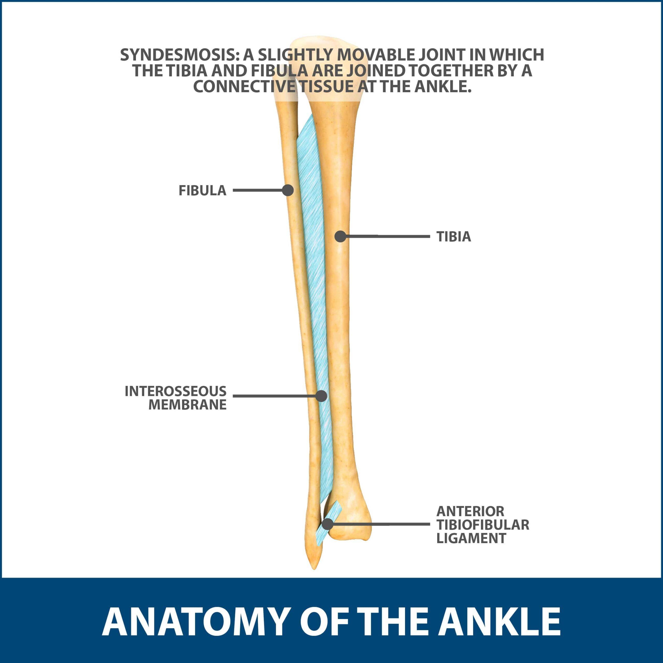Ankle sprain, haigh ankle sprain